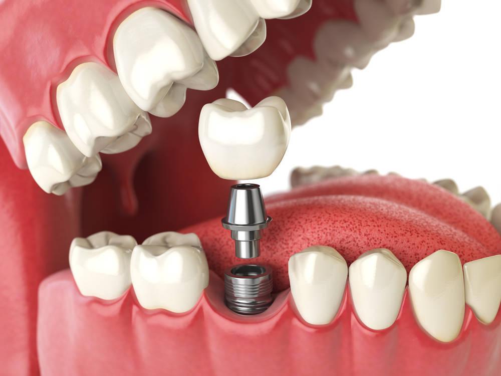 Tratamientos en Implantología