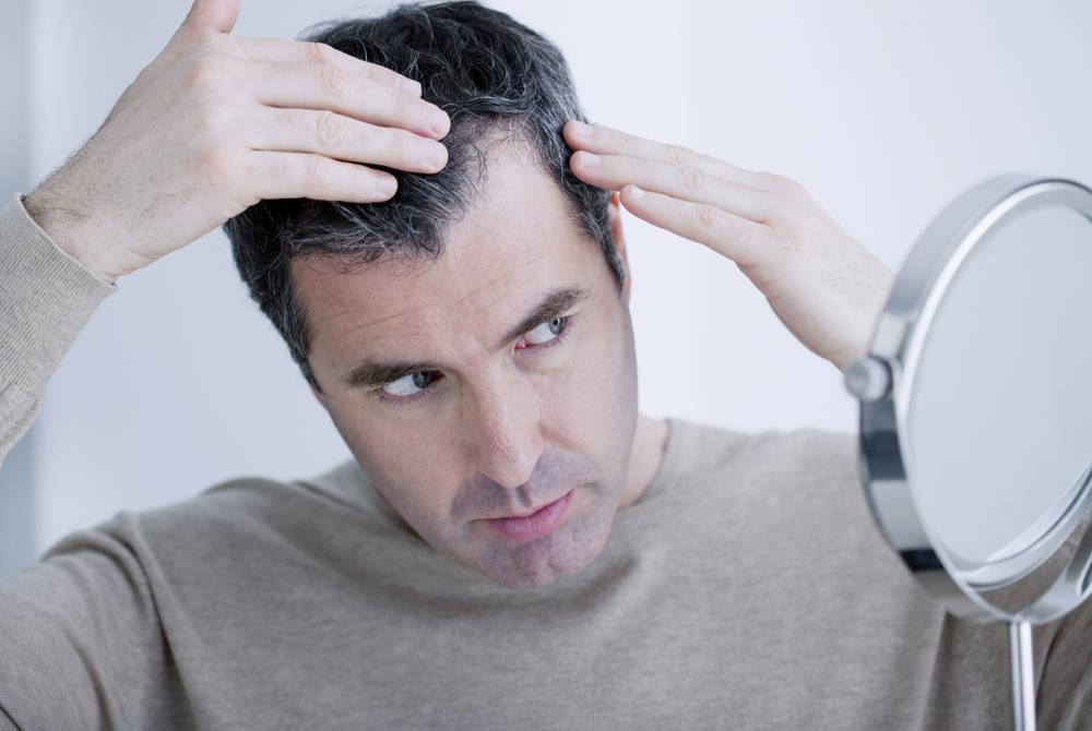 La calvicie, un problema con solución